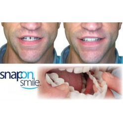 Протезирование за один день Snap on smile оптом