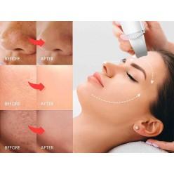 Ультразвуковой скруббер для кожи оптом